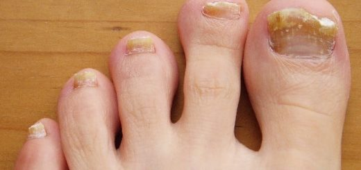 socks for toenail fungus