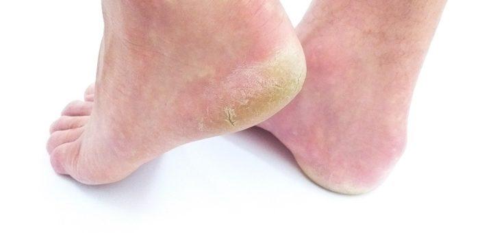 best socks for dry cracked feet